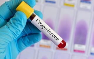 Прогестерон: когда сдавать, на какой день цикла