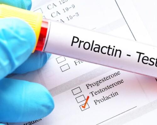 Что это такое гормон пролактин? Норма пролактина в крови