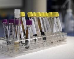 Анализ крови на тестостерон — показания, правила сдачи и расшифровка результатов